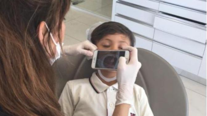 Çocuklarda Ön Dişlerin Ayrık Olması: Frenektomi (Dudak/Dil Bağı Alınması) Nedir?