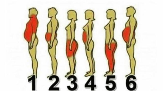 Bölgelere göre kilo alma nedenin nedir?