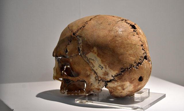10 Bin Yıl Önce Üzerinde İlk Beyin Ameliyatı Yapılan Kafatası Sergilendi