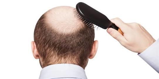 Yıllar Sonra Birden Bire Başlayan Saç Dökülmesinin Sebepleri Nelerdir?