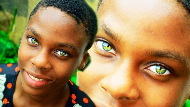 Eşsiz Fiziksel Özellikleri İle Kalabalıklar İçinde Güneş Gibi Parlayan Kızlar!