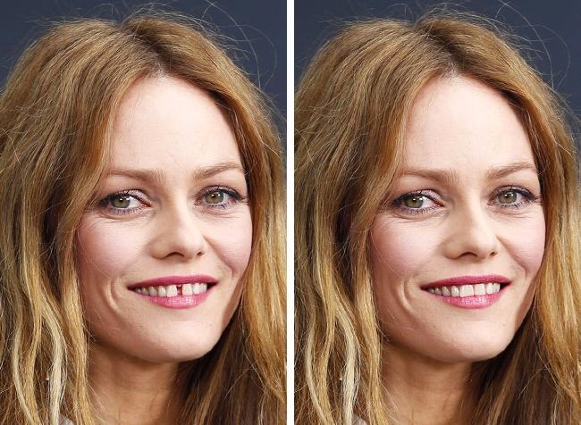 ''Ünlü Kadınların Ayırt Edici Özellikleri Ortadan Kalksa Nasıl Görünürlerdi?'' Sorusuna Cevap Niteliğinde Photoshop Çalışmaları!