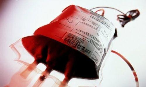 Herkesi Kan Bağışına Davet Ediyorum! Kan Bağışının Faydası Nedir?
