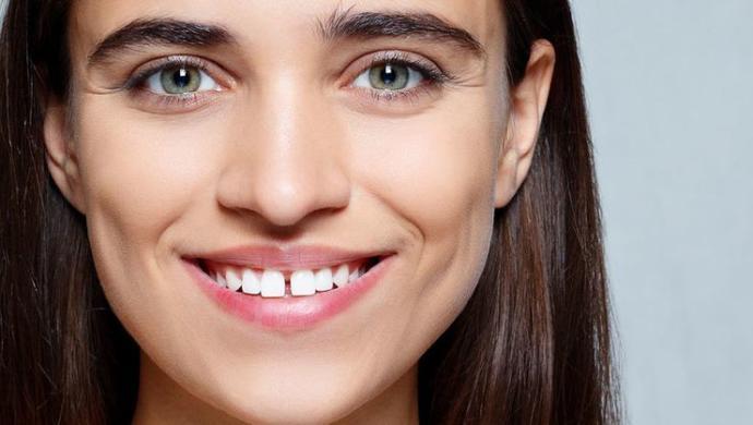 Erkeklere Güzel Gelen Ve Kadınları Çekici Yapan Diş Kusurları Nelerdir?