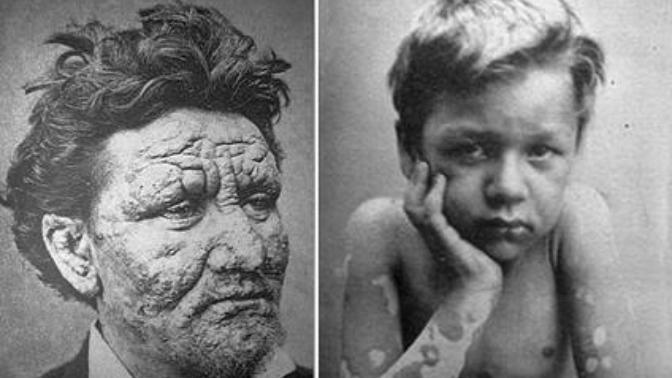 27 Ocak Dünya Cüzzam Günü: Gizemli ve Korkulan Hastalık, Miskin Hastalığı!