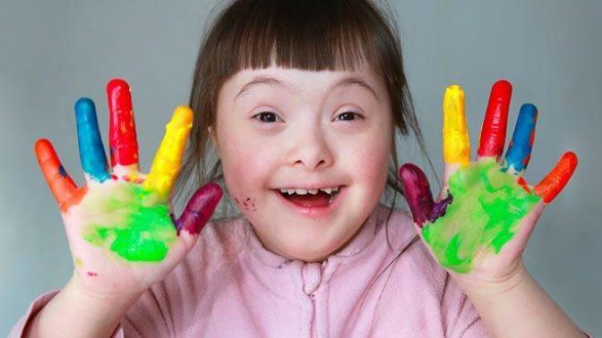 21  Mart  Dünya Down Sendromu Günü: Down Sendromu Nedir?