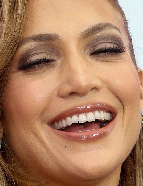 Jennifer Lopez dişleri