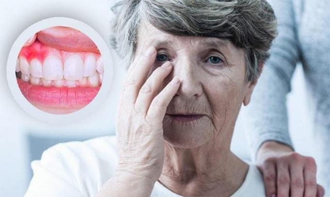 Ağız Sağlığıyla Bağlantılı 5 Ölümcül Hastalık!