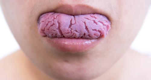 Ağız diş sağlığı bozuk olanlarda kanser riski artıyor.