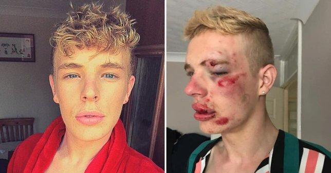 Eşcinsel olduğu için dövülen genç