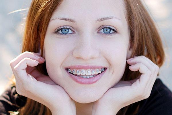 Diş teli sayesinde dişler yavaş yavaş düzelir ve daha güzel bir gülümseme olur.