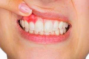 Ağız ve Diş Sağlığı İçin Doğal Çözümler Nelerdir?