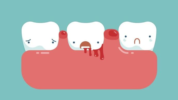 Neden diş eti kanaması olur?