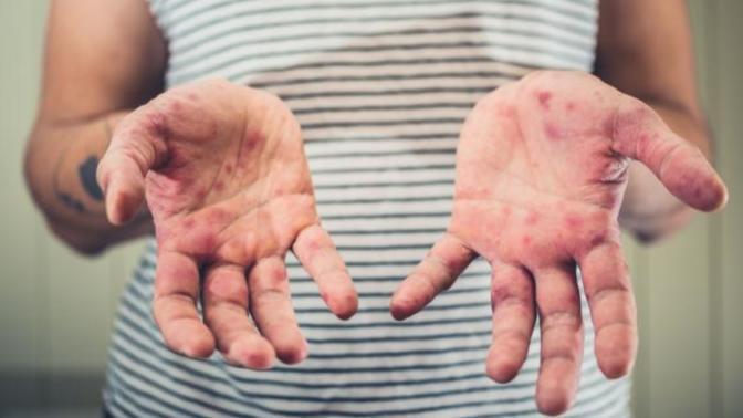 El-Ayak-Ağız Hastalığı Nedir?