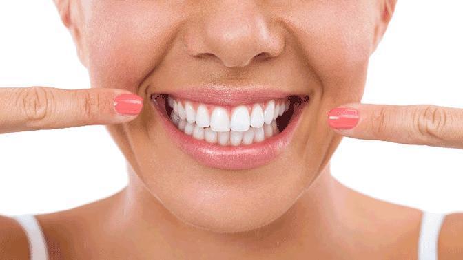 Diş Estetiği Nasıl Yapılır, Fiyatları Nedir?