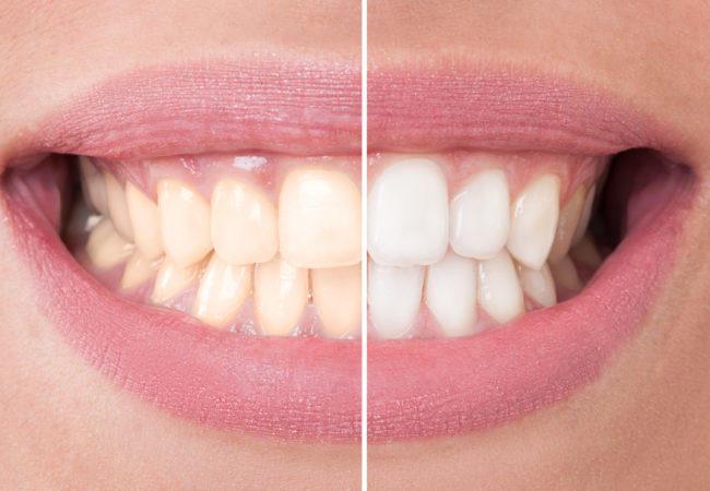 Diş Beyazlatma Evde Nasıl Yapılır?