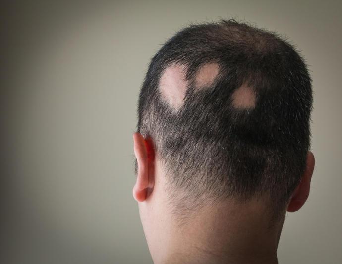Saç Dökülmesine Neden Olabilecek Medikal Sebepler