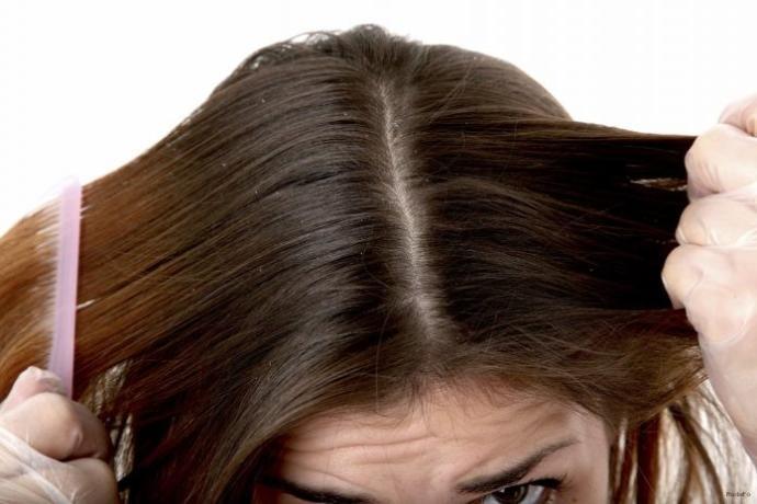Seboreik Dermatitle (Saç Egzaması) Yıllardır Nasıl Başa Çıkıyorum? Deneyimlerim ve Tavsiyelerim!