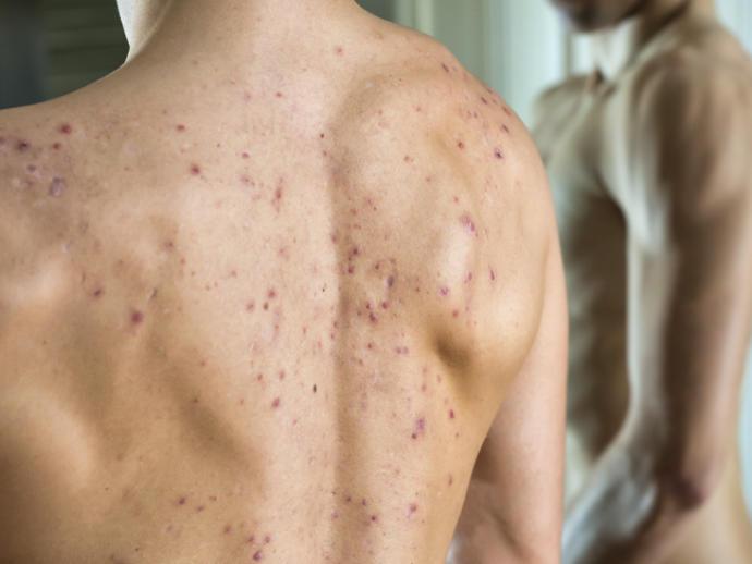 Yüz Sivilcelerinden Daha Sinir Bozucu: Vücut Akneleri Ve Dikkat Edilmesi Gerekenler