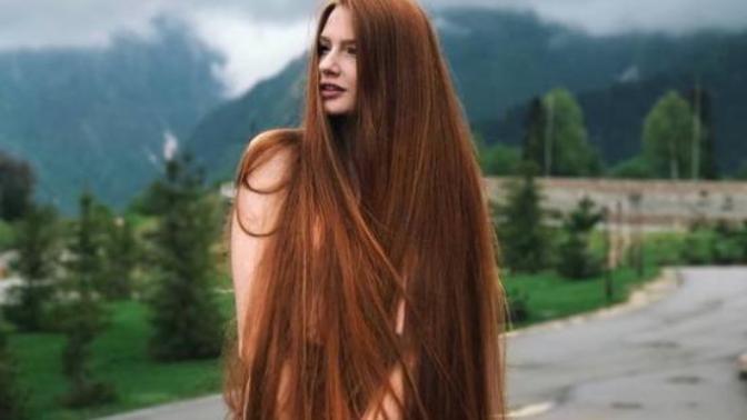 Yaşayanlara Hayatı Sorgulatan Saç Problemleri!