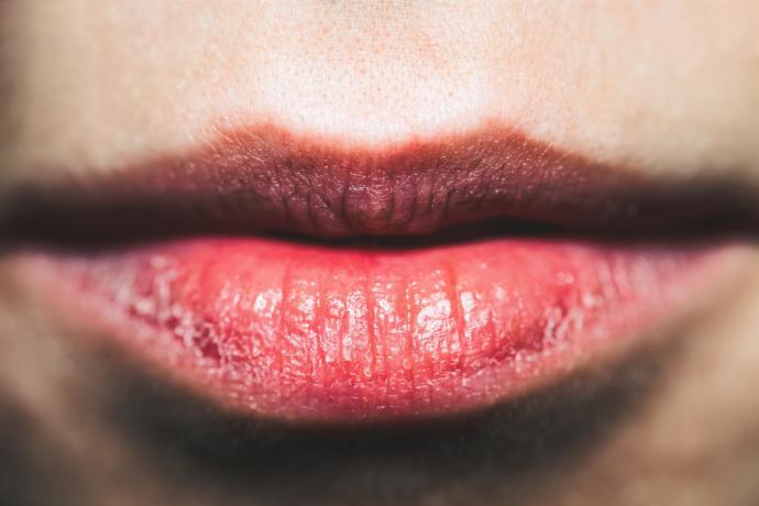 Aynanın Karşısına Geçin: Dudaklarınız Sağlığınız Hakkında Neler Söylüyor?