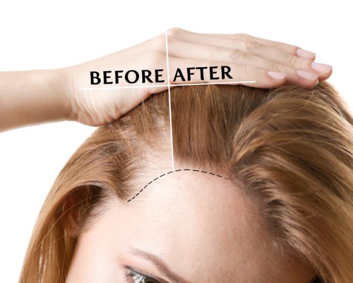Kadınlarda Saç Dökülmesine Karşılık Saç Ekimi