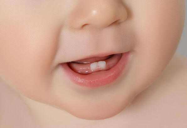 Bebeklerde Diş Çıkarma Belirtileri Nelerdir ve Bebeğin Rahatlaması İçin Neler Yapılabilir?