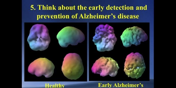 Sağlıklı bir beyin ve erken alzheimer