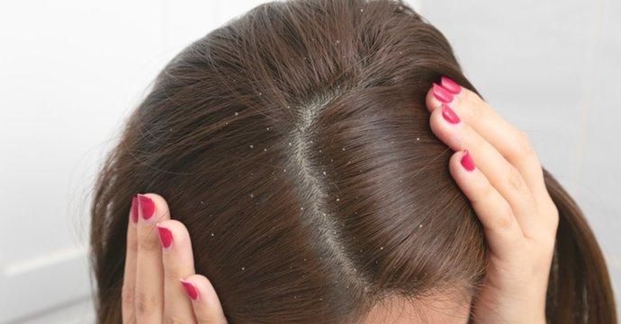 Doğal Yöntemlerle Saç Kepeklenmesine Dur Deyin!