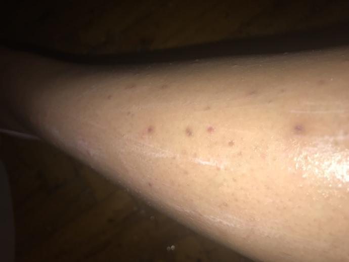 Bu bacaklarımdaki izler nasıl geçer niye böyle oldu anlamadım?