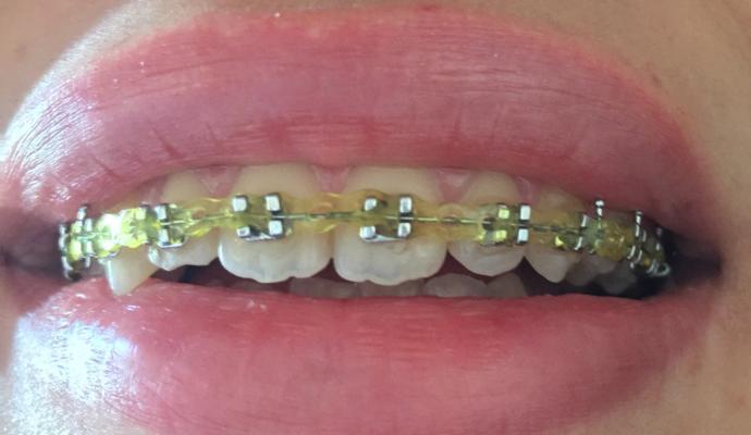 Diş teli lastiğim sarardı ve randevuma 2 ay sonra gidicem nasıl beyazlatabilirim? (Resimli)?