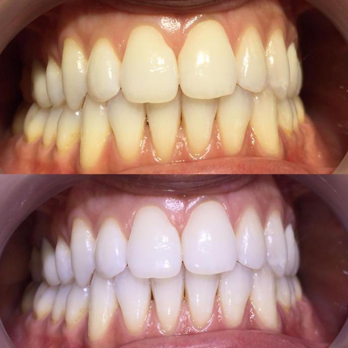 Sarı diş beyaz diş