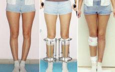 Çarpık bacaklı kızlar itici mi?