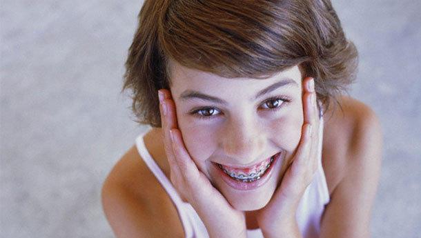 Dişlerinde tel olan kişinin telleri temiz değil ise sizin de mideniz bulanıyor mu?