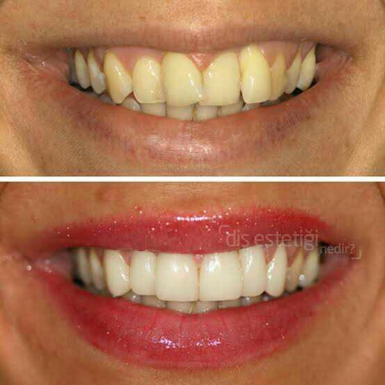 Sizin için yamuk ama temiz diş mi yoksa sarı ama düzgün diş mi daha cazip?