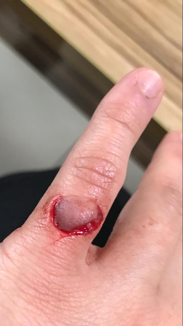 Serçe parmağım kesildi ne yapacağım? (Fotoğraflı)?