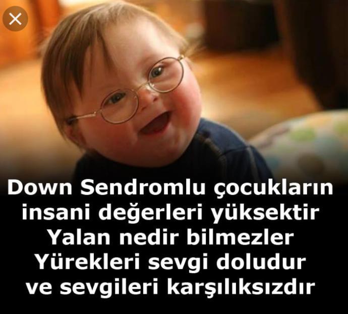 21 Mart'ın Dünya Down Sendromu Günü olduğunu biliyor musunuz?
