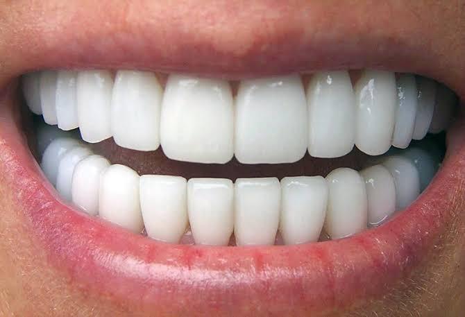 Porselen diş fiyatları ne kadardır?