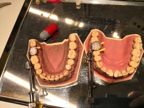 Dişlerinizde kaç adet dolgunuz var?