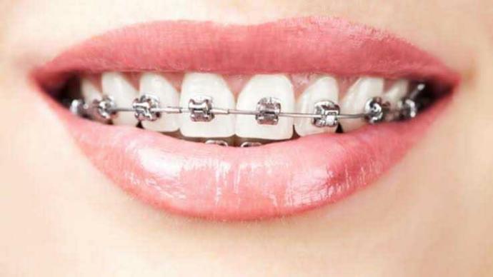 Diş teli taktırıcam hangisi güzell?