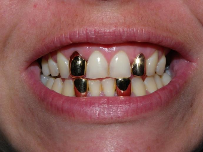 Dişlerini altın kaplatan biriyle sevgili olur musunuz?