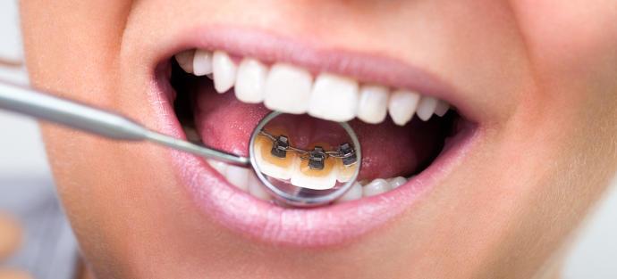 Diş teli taktırmanız gerekirse hangisini tercih edersiniz?