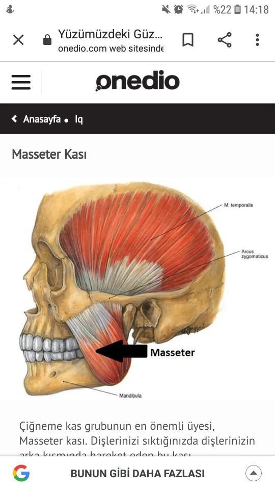 Masseter kası (Çene kası) nasıl çıkar?