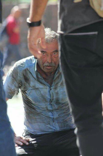Ankara  güvenparkta kendini yakan bu amca için neler düşünüyorsunuz?