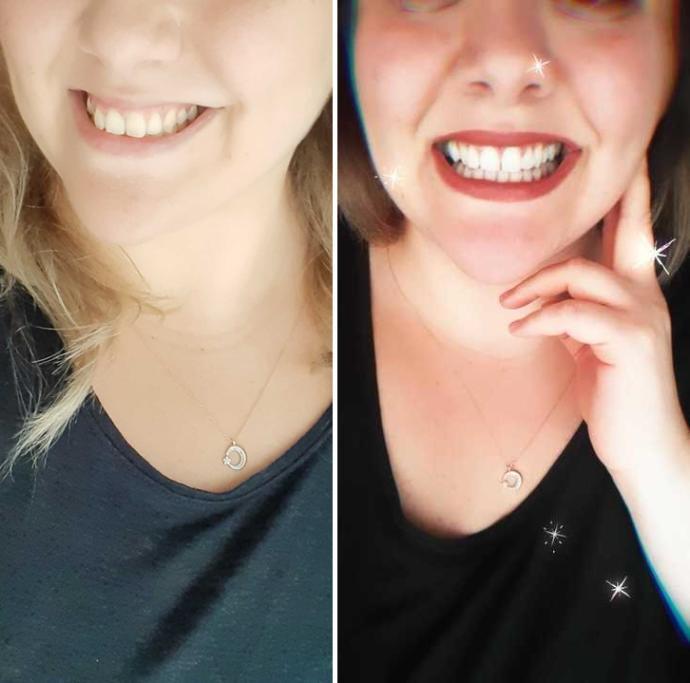 Ofis tipi diş beyazlatma deneyimi