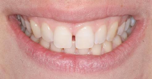 Böyle seyrek dişler hakkında ne düşünüyorsunuz? Kötü mü normal mi iyi mi?