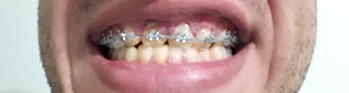 BBu dişler düzelirmi?