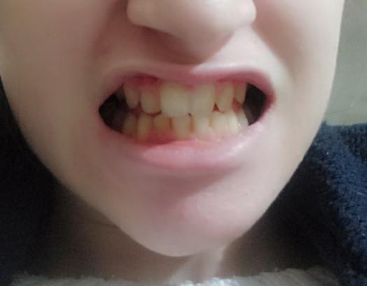 Arkadaşlar diş teli taktiranlar var mı?