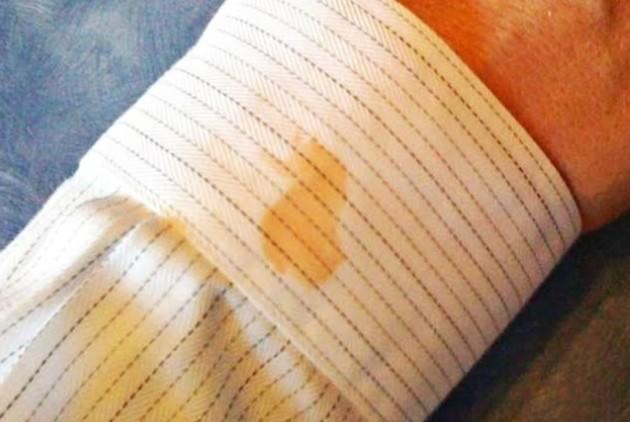 Kurumuş yağ lekesi kıyafetlerden nasıl çıkar?