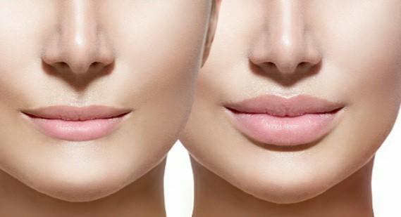 Kullanıp da memnun kaldığınız dudak dolgunlaştırıcılar var mı?